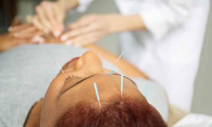 Kim Drolet, L.ac. - Imperial Beach: Three Acupuncture Treatments and an Initial Consultation at Kim Drolet, L.Ac. (65% Off)