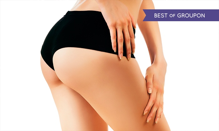 VGmedispa - Multiple Locations: Scar or Stretch Mark Treatment for £49 at VGmedispa (86% Off)