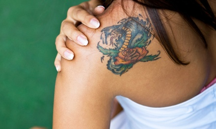 Three Laser Tattoo-Removal Treatments on a Small, Medium, or Large Area at The Laser Cafe (Up to 81% Off)