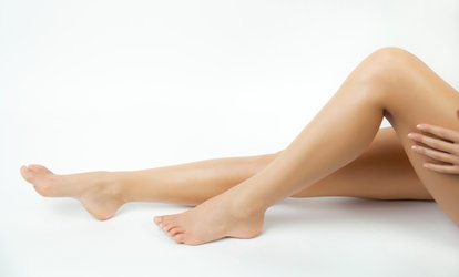 <strong>Treatment</strong> of One, Two, or Three <strong>Spider Veins</strong> at YZ Healthcare PA (Up to 67% Off)