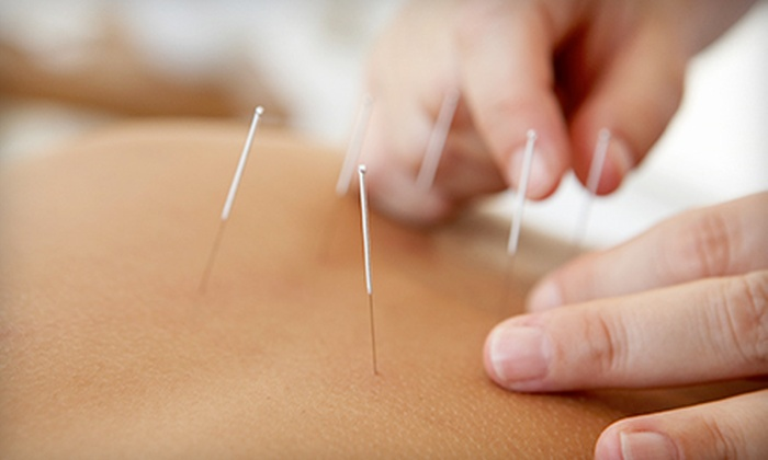 Dragon Rising Chinese Medicine - Fair Oaks: One or Three Acupuncture Treatments with Initial Exam at Dragon Rising Chinese Medicine (69% Off)