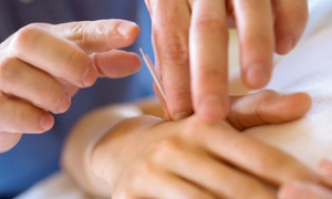 Phoenix Community Acupuncture: Three or Five Acupuncture Treatments at Phoenix Community Acupuncture (Up to 74% Off)
