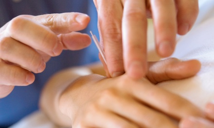 Phoenix Community Acupuncture - Up To 73% Off - Phoenix ...