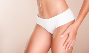 Glow 'N' Glamour Salon: One or Two Cryogenic Lipolysis Sessions at Glow 'N' Glamour Salon
