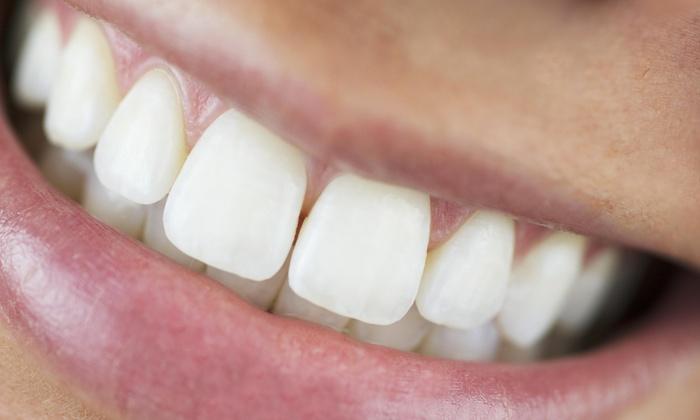 DaVinci by Adams Teeth Whitening - Central London: C$149 for Teeth Whitening at DaVinci by Adams Teeth Whitening