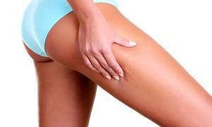 CAPOTA: 10 o 15 sesiones de presoterapia y masaje manual anticelulítico desde 29,90 €