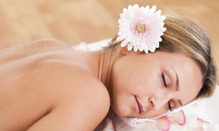 One or Three Acupuncture Session at Acu-Therapy Associates (Up to 74% Off)