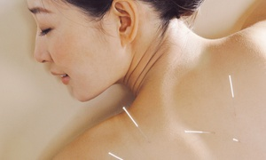 Green Harmony Acupuncture Clinic: One or Three Acupuncture and Electroacupuncture Treatments at Green Harmony Acupuncture Clinic (Up to 72% Off)