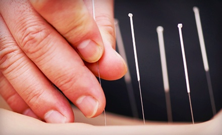 $39 for an Acupuncture Package at All Care Health and Rehabilitation Center ($100 Value)
