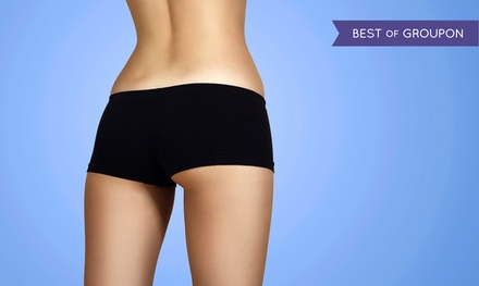 Three or Six Ultrasonic Lipo-Cavitation Treatments at LeeMarie Body Contour & Wellness (Up to 88% Off)