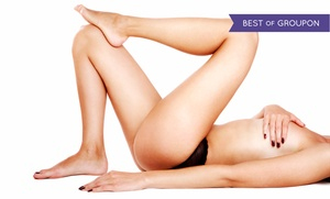 Avanti Skin Center of Willow Bend: One or Two Sclerotherapy Treatments at Avanti Skin Center of Willow Bend (Up to 71% Off)