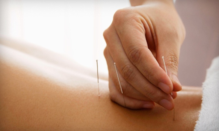 Chelsea Chiropractic - Hollywood: One, Three, or Five Acupuncture Sessions at Chelsea Chiropractic (Up to 67% Off)