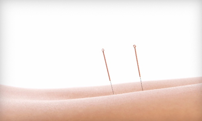 Natural Healing Center - The Meadows: Two- or Four-Visit Acupuncture Packages with Exam and Consultation at Natural Healing Center  (Up to 76% Off)