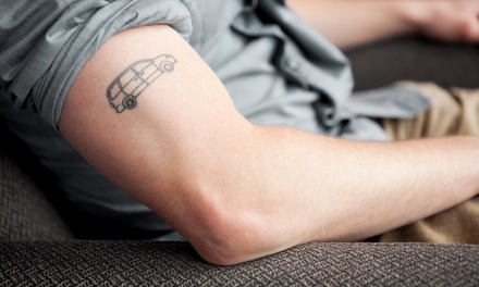 Laser Tattoo Removal: One $49, Two $95 or Three Sessions $139 at City Tattoo Removal Up to $1,950 Value