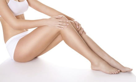 Two or Four Sclerotherapy Spider-Vein-Removal Treatments with Consultation at Asclepius Medical Inc (Up to 58% Off)