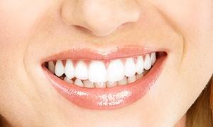 DamaDent: Stały aparat ortodontyczny samoligaturujący od 1199 zł w Dama Dent