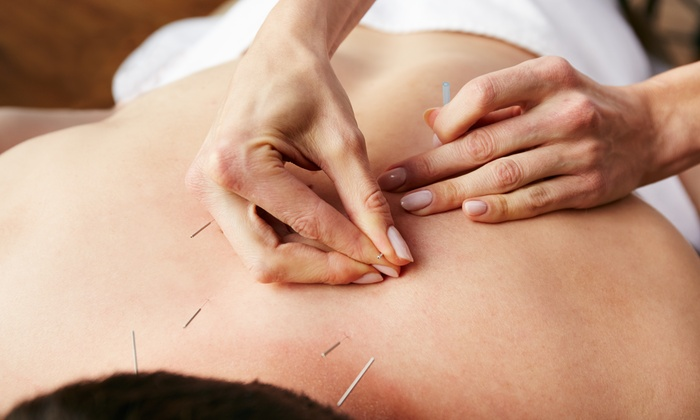 Rehab World Physical Therapy - Multiple Locations: An Acupuncture Treatment and an Initial Consultation at Rehab World Physical Therapy (77% Off)
