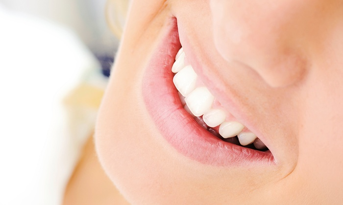 B'Yond White - Memphis: B'Yond White Double or Triple Teeth-Whitening Session at B'Yond White (Up to 72% Off)