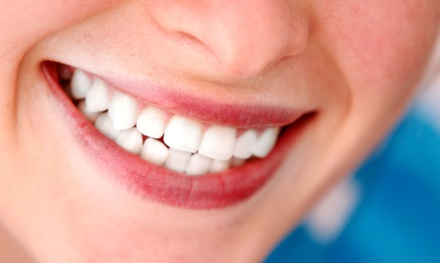 Zoom Teeth Whitening from Peter Mann, DDS (Up to 84% Off)