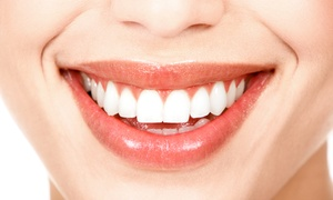 Mission Boulevard Dental Group: $39 for a Dental Package with Custom Bleaching Trays, Exam, and X-rays at Mission Boulevard Dental Group ($505 Value)