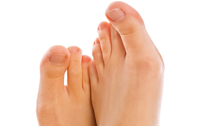 New Look Vein and Aesthetic Center - Saint Louis: Laser Toenail-Fungus-Removal Treatment for One or Both Feet at New Look Vein and Aesthetic Center (Up to 72% Off)