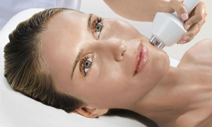 Vis à Vis: Facial Contouring and Skin-Tightening Treatment for Eyes, Lips, or Neck at Vis à Vis (Up to 68% Off)