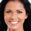Up to 79% Off Teeth Whitening + Optional Exam