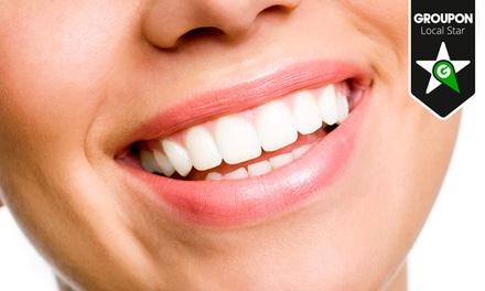 Limpieza bucal con opción a blanqueamiento dental led y kit de blanqueamiento desde 12,90 € en Clínica Dental Gama