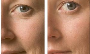 DIANA SENOVA COSMETICS: Up to 52% Off Oxygen Facials at DIANA SENOVA COSMETICS