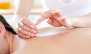 Whole Life Health and Wellness: 45-Minute Acupuncture Session at Whole Life Health and Wellness (Up to 79% Off)