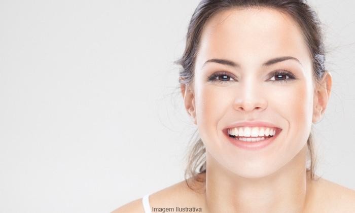 Lindaderme - São Paulo: Linda Derme – Tatuapé: 3, 5 ou 7 visitas para tratamento de pele com laser ND: YAG ou IPL, a partir de R$69,90
