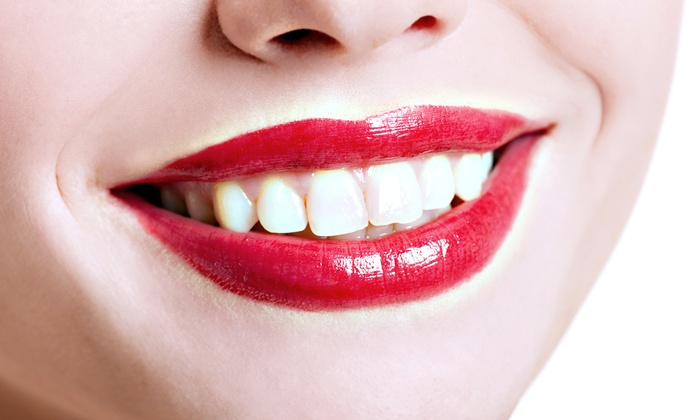 Beauti-Call - Phenix Salon Suites: $75 for In-Office Teeth-Whitening Treatment at Beauti-Call ($250 Value)