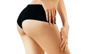 Physiomins: Traitement anti cellulite sur mesure chez Physiomins