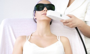 The Natural Place: Six 15-, 30-, or 60-Minute Electrolysis Treatments at The Natural Place (Up to 82% Off)