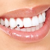 50% Off Tooth Crystals