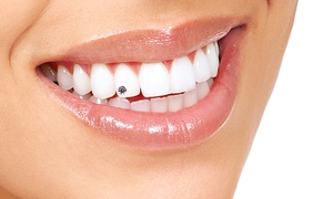 Evolved Body Arts: $25 for $50 Worth of Tooth Crystals — Evolved Body Arts