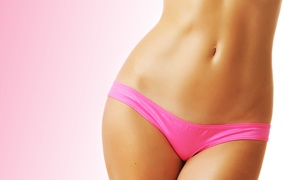 Laser Beauty Medical Spa: Six Laser Hair-Removal Treatments at Laser Beauty Medical Spa (Up to 97% Off). Three Options Available.
