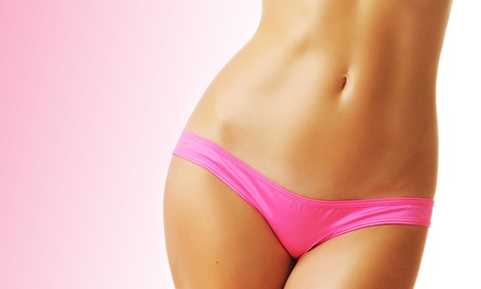 Six Laser Hair-Removal Treatments at Laser Beauty Medical Spa (Up to 97% Off). Three Options Available.
