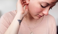 Laser Tattoo Removal at Hampshire Laser Skin Clinic