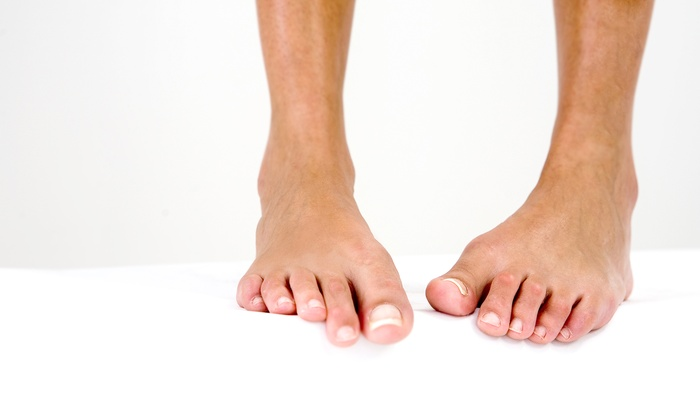 Zappy Feet - Norman: Up to Three Laser Nail-Fungus Removal Treatments on One or Both Feet at Zappy-Feet (Up to 59% Off)
