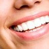 Up to 64% Off Implants at Apple Dental