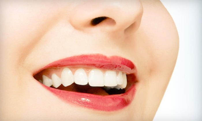 Space Center Orthodontics - Clear Lake: $69 for a Custom Teeth-Whitening Kit at Space Center Orthodontics ($475 Value)