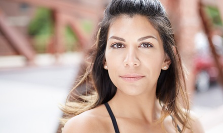 $99 for One Photofacial at Evolve Skin and Laser LLC ($300 Value)
