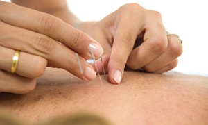 Movable Qi Acupuncture: An Acupuncture Treatment and an Initial Consultation at Movable Qi Acupuncture (45% Off)