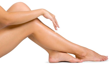 Spider-Vein Treatment or $199 for $1,000 Toward Varicose-Vein Treatment at Alaska Vein Care