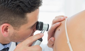 Whole Health Medical Center: Noninvasive Removal of One, Two, or Three Moles, Skin Tags, or Warts at Whole Health Medical Center (Up to 55% Off)