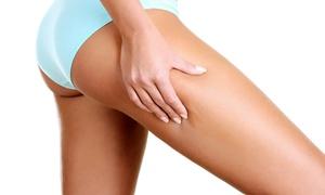 Körperkontur Ästhetikinstitut: Cellulite-Behandlung mit Vakuummassage und Tiefenwärme am Deutzer Hafen in Köln ab 24,90 € (bis zu 78% sparen*)
