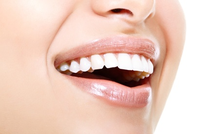 30- or 60-Minute Basic or Next-Level Teeth Whitening at I Am Woman (Up to 81% Off)