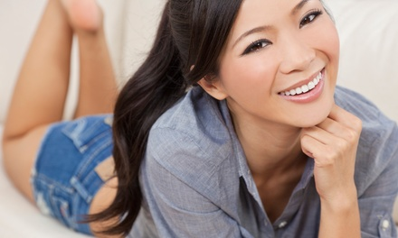 Laser Teeth-Whitening or Invisalign Package at Fuller Smiles (Up to 91% Off). Three Options Available.