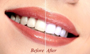 Smile Labs - DFW: Up to 67% Off In-Office Teeth Whitening Session at Smile Labs - DFW